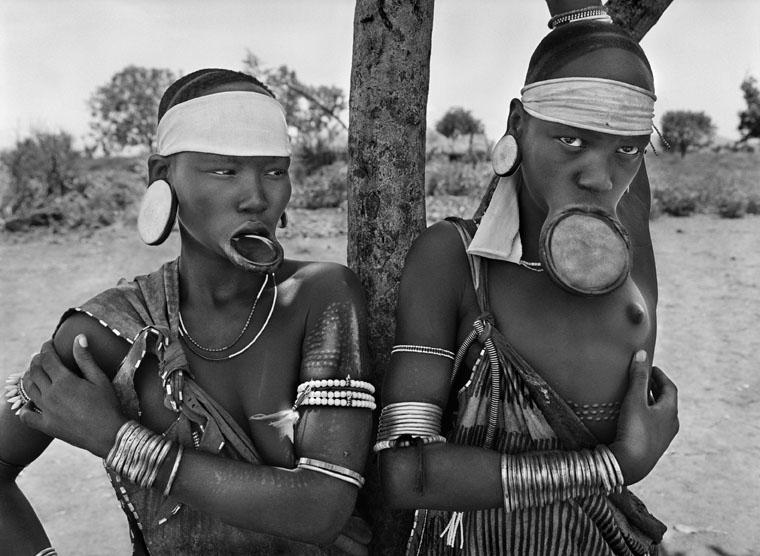 Etiopia, 2007.