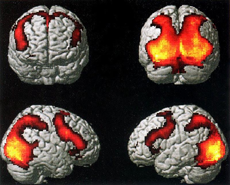 aree-cervello-neuroni-specchio