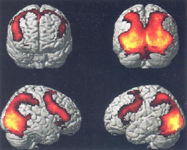 Neuroni specchio giacomo rizzolatti ha capito perch il bello e il buono accendono il nostro - Neuroni a specchio ...