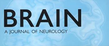 stimolazione-cervello-ictus-bicocca