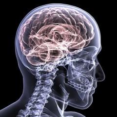 Stimolo elettrico al cervello aiuta le persone colpite da ictus: lo rivela uno studio dell'Università Bicocca