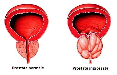 iperplasia-prostatica-benigna